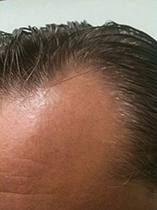 top view of a man with a high hairline
