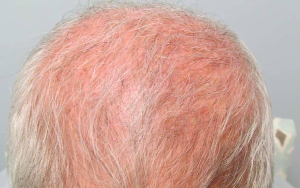 HEAD OF A MAN WITH A HAIR LOSS PROBLEM