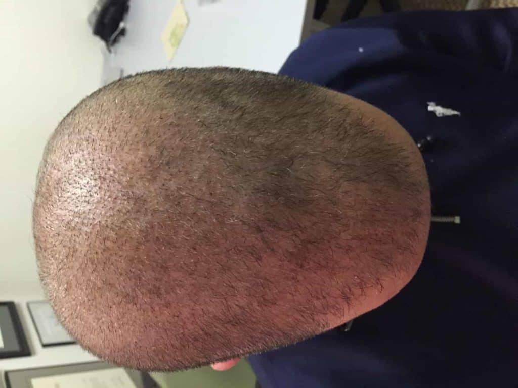 Top view of a scalp with hair problem.