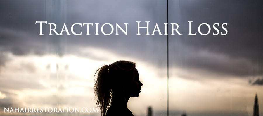 GIRL SIDEVIEW SILHOUTE. With text*TRACTION HAIR LOSS*