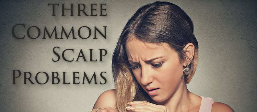 Girl looking at the tips of her hair. With text* THREE COMMON SCALP PROBLEMS*