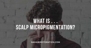 """curly guy trying to hide his face with his dark red shirt with the text, """"WHAT IS... SCALP MICRO PIGMENTATION?"""""""