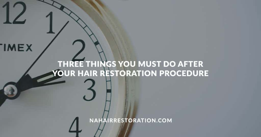 "a clock pointing on 2 and 3 with a clear background with the text, ""THREE THINGS YOU MUST DO AFTER YOUR HAIR RESTORATION PROCEDURE"""