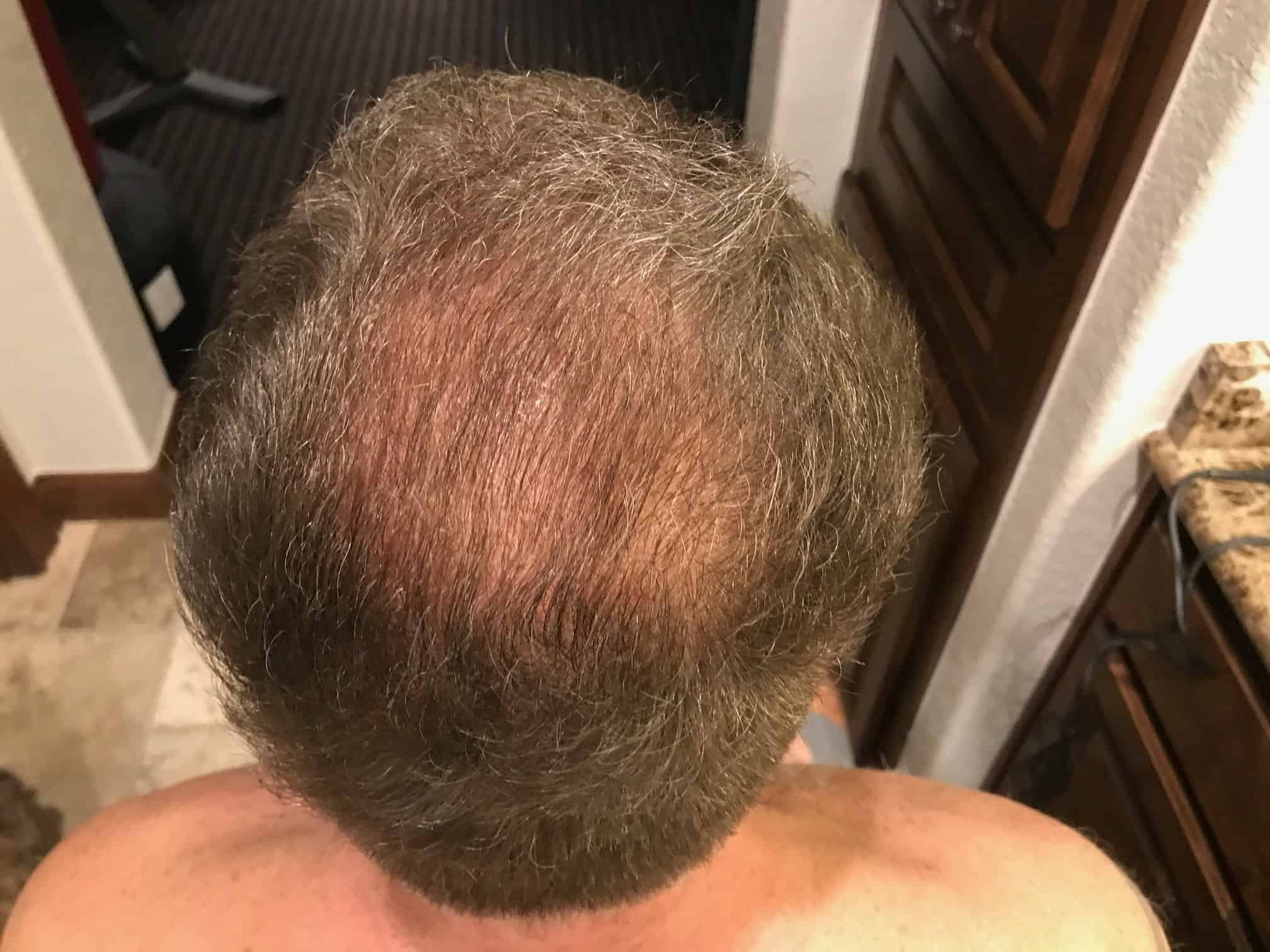 patient-example-shaveless-fue