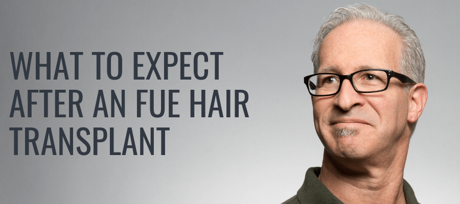 what-to-expect-after-fue
