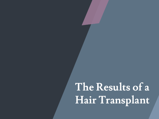 The Results of a Hair Transplant